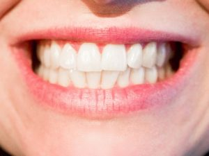 Orthodontist in Palos Hills IL