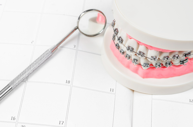 The wait to have them removed, including the need to avoid certain foods or habits can be tough, but taking care of your braces will ensure you have a healthy smile when they finally are removed.